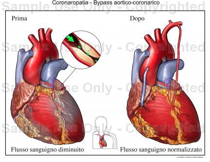 Specializzazioni storia della medicina il blog for Vasi coronarici