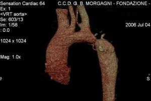coartazione dell'aorta