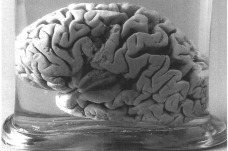 il cervello del sig. TAN